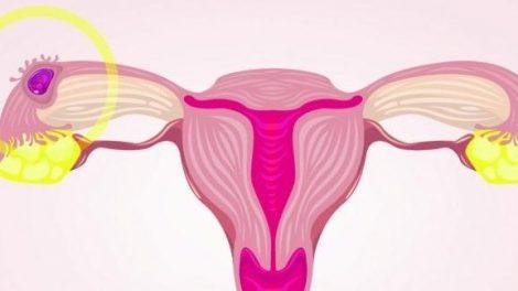 El aborto retenido o diferido