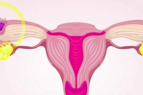 Aborto retenido o diferido