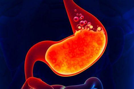 Por qué tengo acidez de estómago: cuáles son sus causas