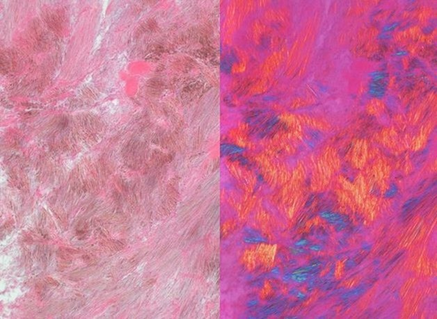 cristales de acido urico en orina sintomas enfermedad por el acido urico acido urico bajo en orina