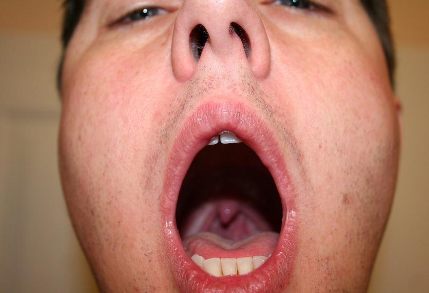 Cómo aclarar la garganta