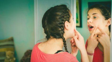 Aparición del acné en la adolescencia