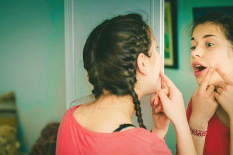 Por qué aparece el acné en la adolescencia y prevención