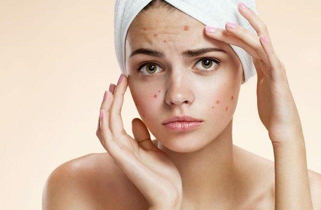 Todo sobre el acné juvenil