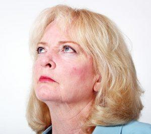 Acné rosácea: causas, síntomas y cómo evitar el empeoramiento