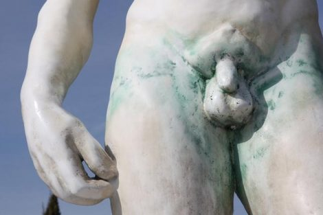 Cómo aliviar el dolor de testículos