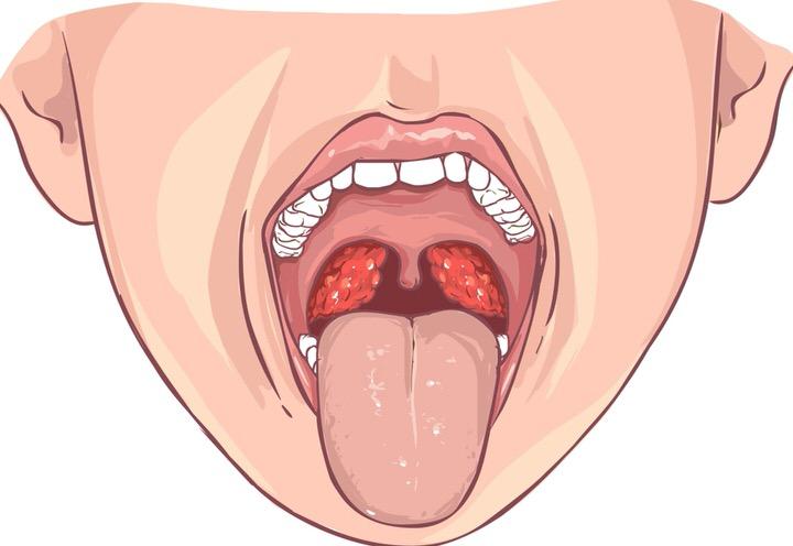 Amigdalitis o inflamación de las amigdalas