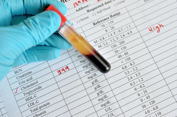 Valores normales de colesterol en sangre