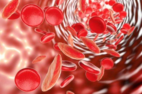Anemia por falta o deficiencia de hierro (anemia ferropénica): causas y síntomas