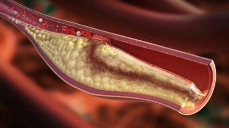Causas del aumento del colesterol malo