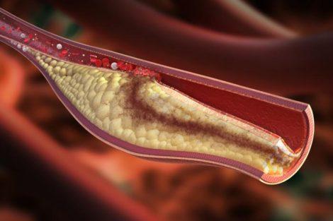 Por qué aumenta el colesterol malo
