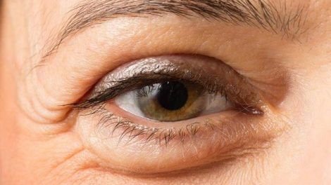 Consejos para mejorar las ojeras y bolsas en los ojos