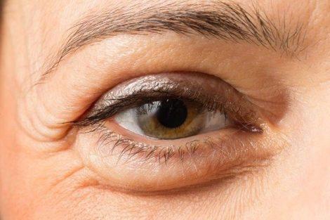 Cómo mejorar las ojeras y desinflamar las bolsas bajo los ojos con estos remedios