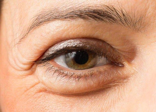 Remedios contra bolsas y ojeras bajo los ojos