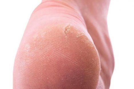 Por qué aparecen los callos en pies y manos