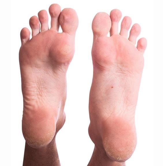 El hongo las uñas la piel