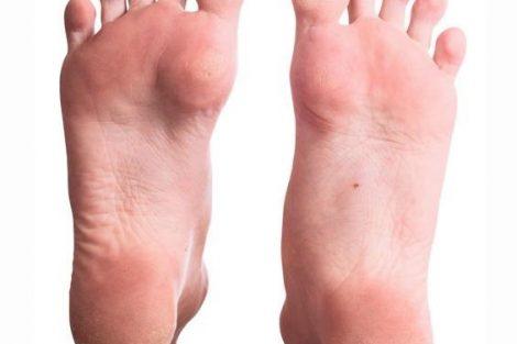 Cómo evitar las durezas y callos en los pies fácilmente
