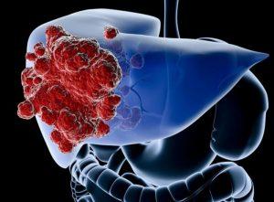 Cáncer de hígado (hepatocarcinoma): síntomas, causas y tratamiento
