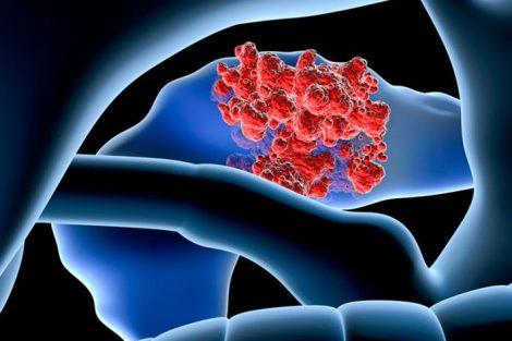 Cáncer de páncreas: qué es, causas, síntomas y tratamiento