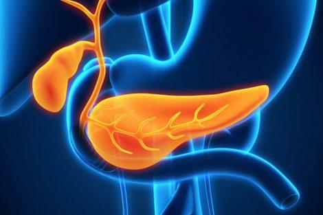 Por qué el cáncer de páncreas es tan agresivo y causa tantas muertes