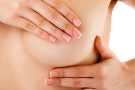 Cáncer de seno: qué es, causas y síntomas de alarma