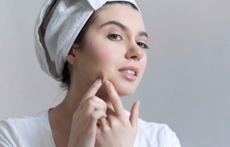 Causas del acne en adolescentes
