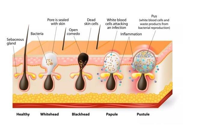 causas-acne