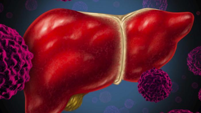 Causas de la bilirrubina elevada