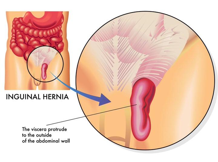 ¿Cuáles son las causas de la hernia inguinal?