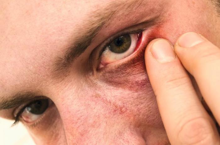 Evitar hinchazón de ojos