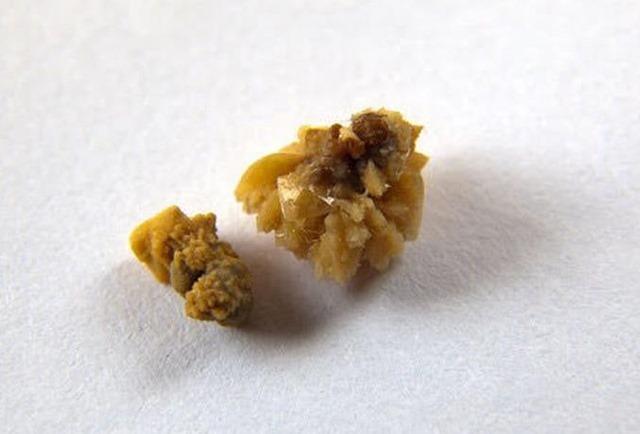 bajar acido urico homeopatia para tratar la gota urea creatinina y acido urico elevados