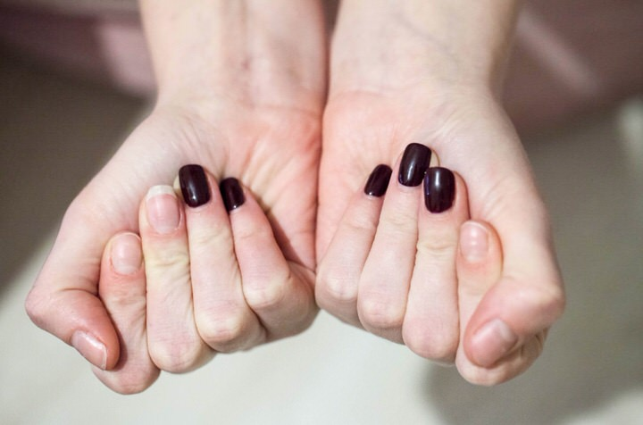 Causas de tener uñas débiles