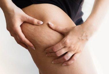Celulitis: la guía definitiva para eliminarla