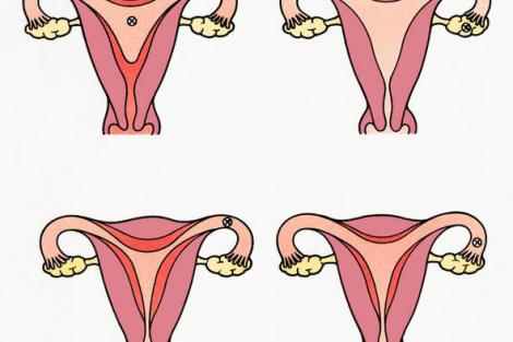 Cómo es el ciclo menstrual de la mujer