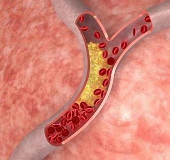 Niveles saludables de colesterol