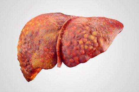 Cirrosis hepática: qué es, causas, síntomas, tipos y tratamiento