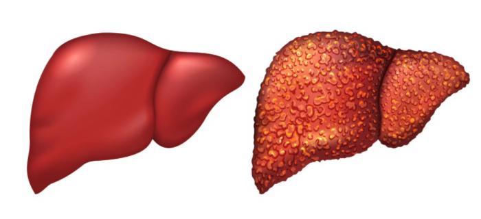 Cirrosis y enfermedades hepaticas