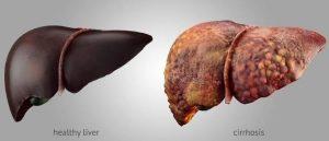 Una buena noticia: Encuentran posible tratamiento para la cirrosis