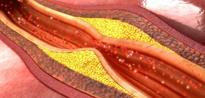 Consecuencias del colesterol elevado
