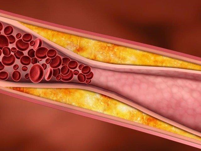 colesterol-obesidad