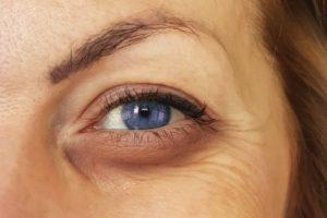 Cómo quitar las bolsas de los ojos