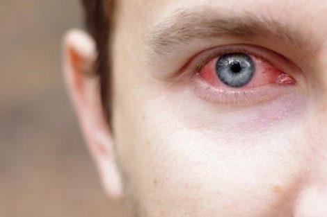 Conjuntivitis: ¿Qué es?, síntomas, causas y tratamiento