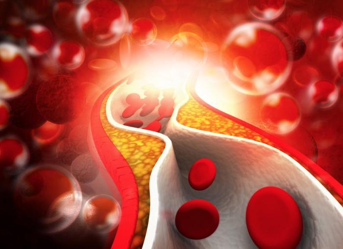 Colesterol LDL o malo
