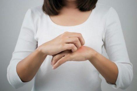 Cómo aliviar la dermatitis naturalmente