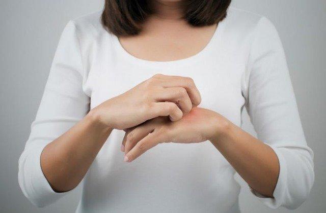 Descubre cómo aliviar la dermatitis de forma natural