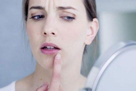Cómo mejorar los sintomas del herpes labial y cómo prevenirlo naturalmente