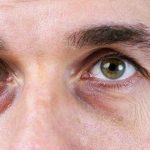 Consejos para reducir las ojeras naturalmente