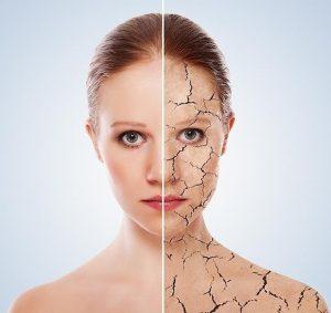 Consejos y remedios naturales para la piel seca
