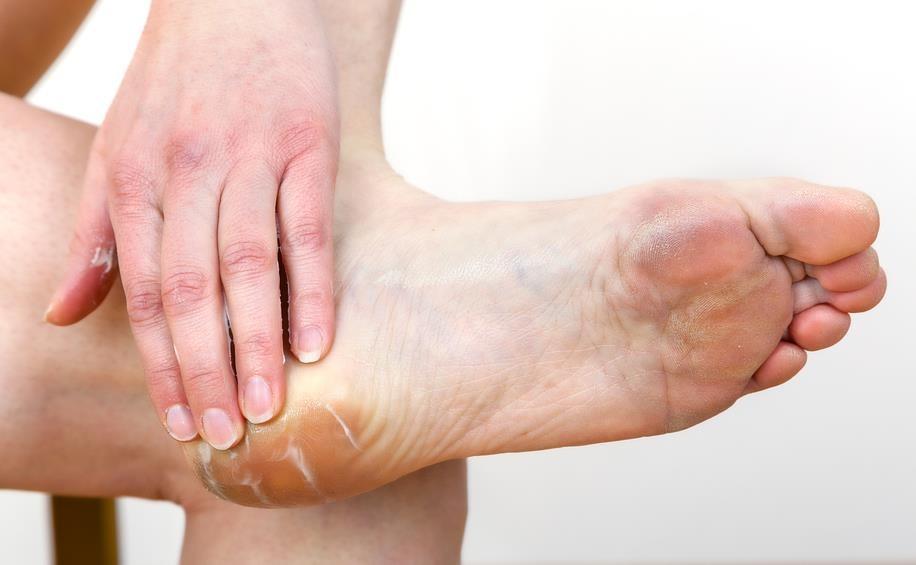 Aliviar las rozaduras de zapato con remedios caseros