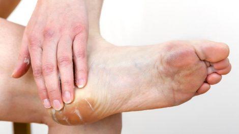 Consejos naturales para aliviar rozaduras de zapatos